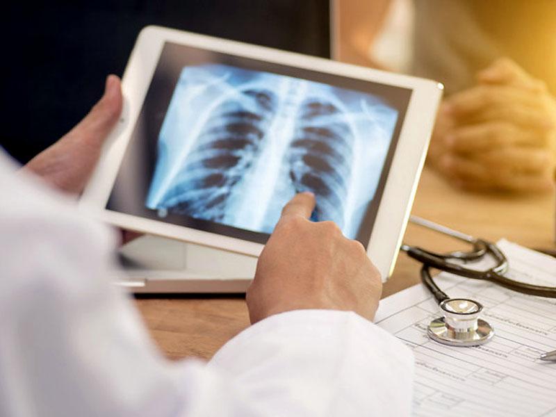 Lamezia. Evento scientifico per la XI edizione del TB day